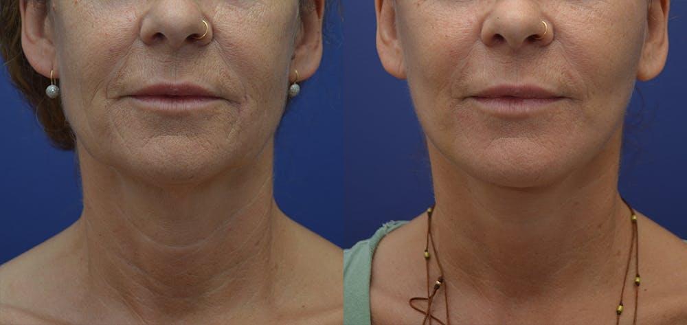 Facelift Gallery - Patient 57582080 - Image 2