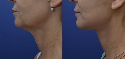 Facelift Gallery - Patient 57582080 - Image 1
