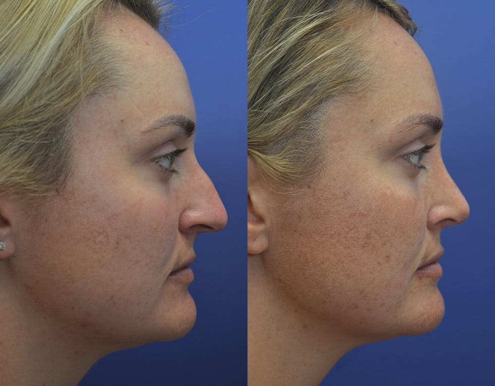 Rhinoplasty (Nose Reshaping) Gallery - Patient 5724943 - Image 5