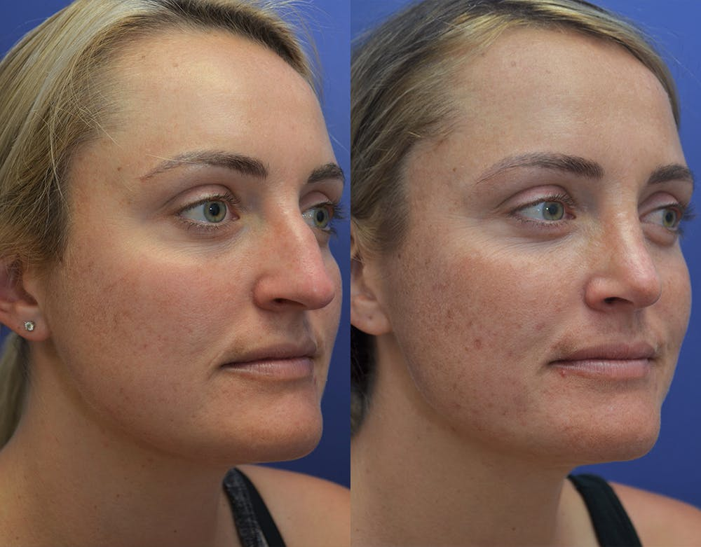 Rhinoplasty (Nose Reshaping) Gallery - Patient 5724943 - Image 4