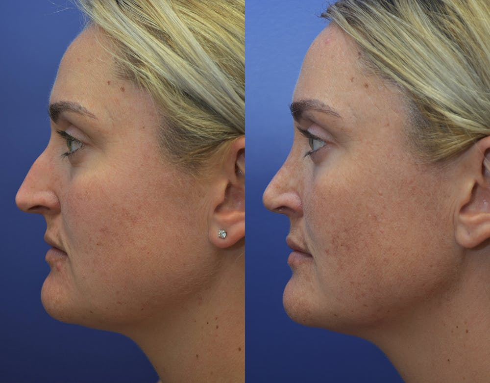 Rhinoplasty (Nose Reshaping) Gallery - Patient 5724943 - Image 3