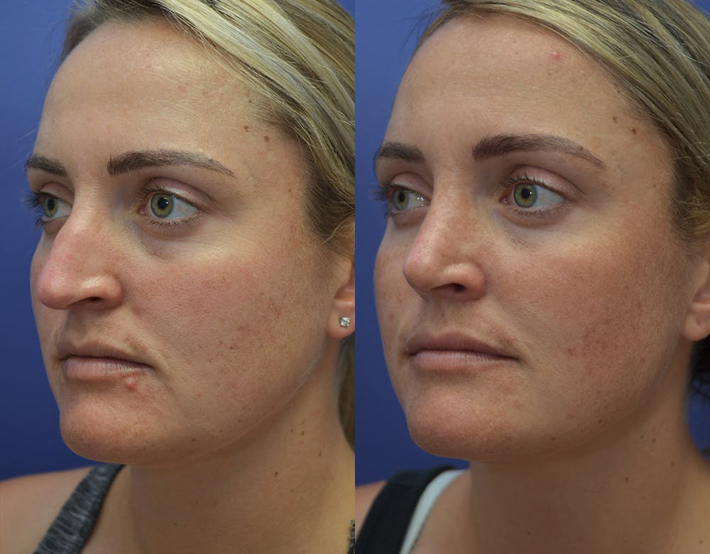 Rhinoplasty (Nose Reshaping) Gallery - Patient 5724943 - Image 2