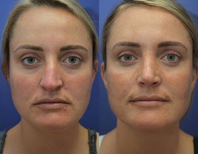 Rhinoplasty (Nose Reshaping) Gallery - Patient 5724943 - Image 1