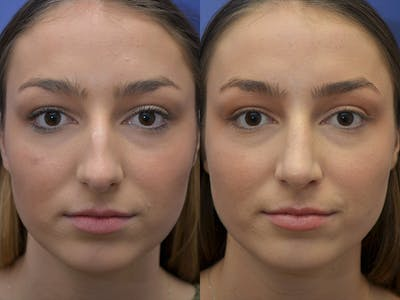 Rhinoplasty (Nose Reshaping) Gallery - Patient 5724935 - Image 1