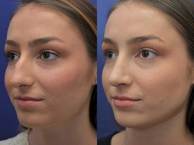 Rhinoplasty (Nose Reshaping) Gallery - Patient 5724935 - Image 2