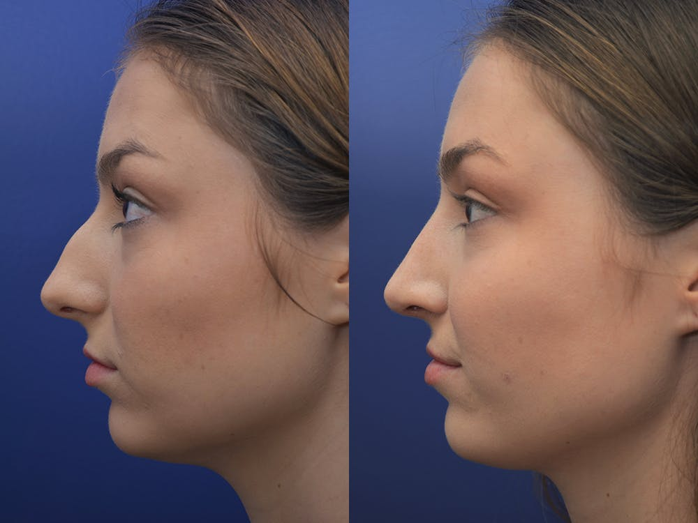 Rhinoplasty (Nose Reshaping) Gallery - Patient 5724935 - Image 3