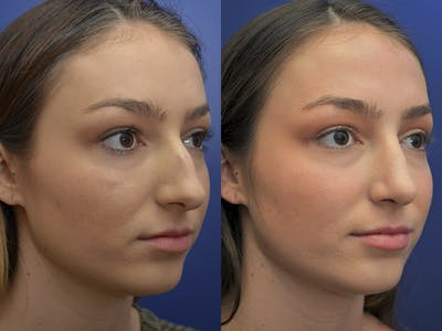 Rhinoplasty (Nose Reshaping) Gallery - Patient 5724935 - Image 4