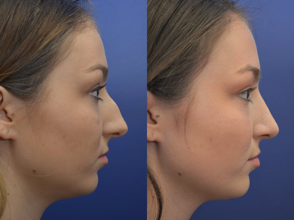 Rhinoplasty (Nose Reshaping) Gallery - Patient 5724935 - Image 5