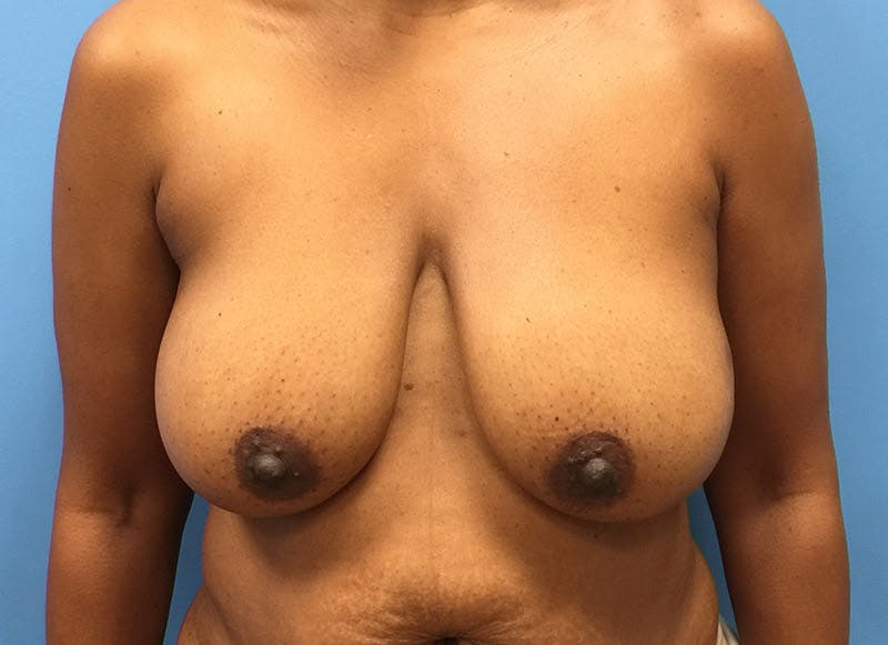 Breast Reconstruction - Flap Gallery - Patient 3831096 - Image 1