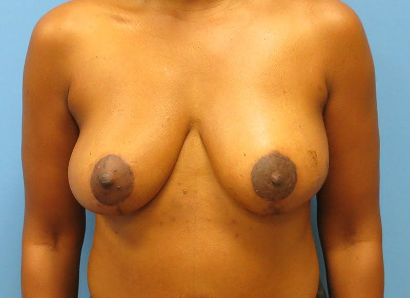 Breast Reconstruction - Flap Gallery - Patient 3831096 - Image 2