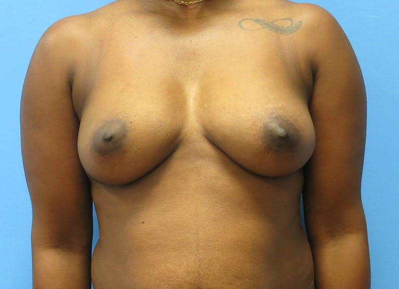 Breast Reconstruction - Flap Gallery - Patient 3831097 - Image 1