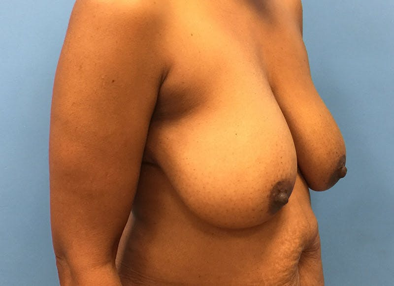 Breast Reconstruction - Flap Gallery - Patient 3831096 - Image 3