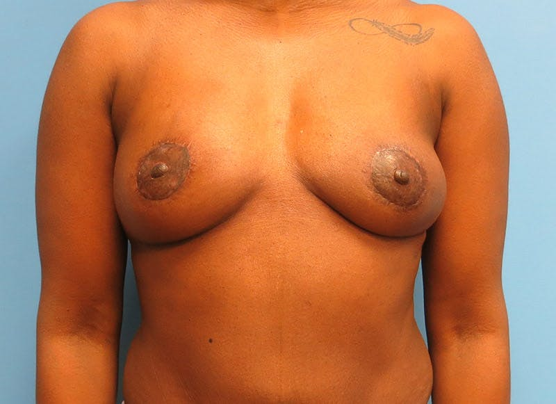 Breast Reconstruction - Flap Gallery - Patient 3831097 - Image 2