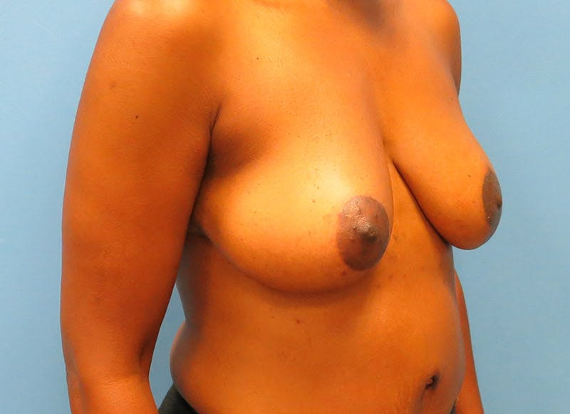 Breast Reconstruction - Flap Gallery - Patient 3831096 - Image 4