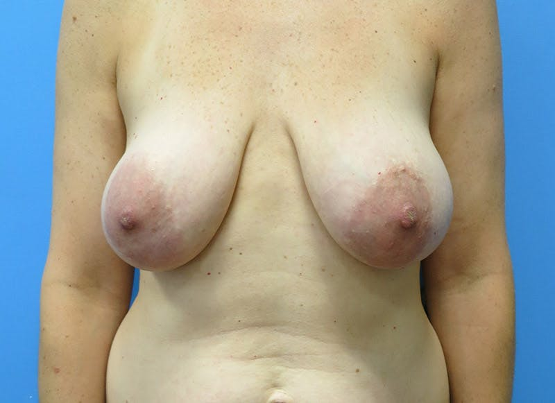 Breast Reconstruction - Flap Gallery - Patient 3831098 - Image 1
