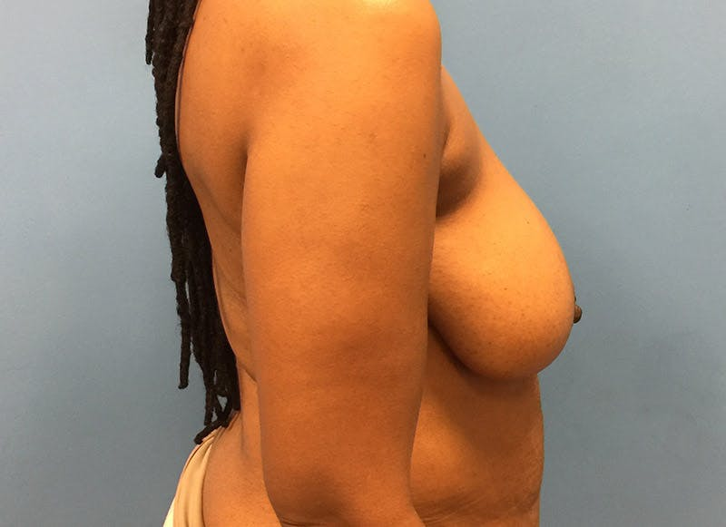 Breast Reconstruction - Flap Gallery - Patient 3831096 - Image 5