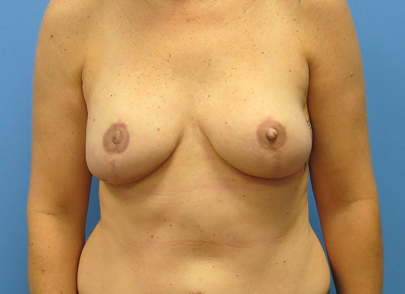 Breast Reconstruction - Flap Gallery - Patient 3831098 - Image 2