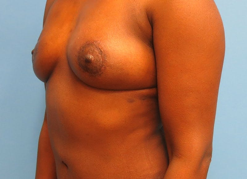 Breast Reconstruction - Flap Gallery - Patient 3831097 - Image 4