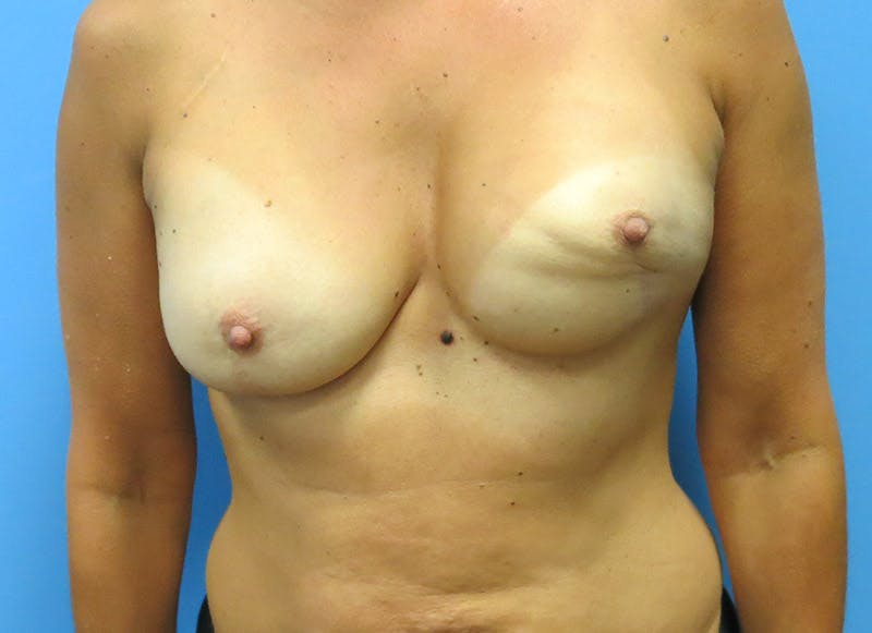 Breast Reconstruction - Flap Gallery - Patient 3831099 - Image 1