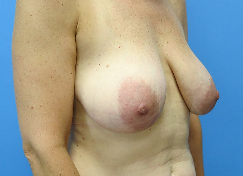 Breast Reconstruction - Flap Gallery - Patient 3831098 - Image 3