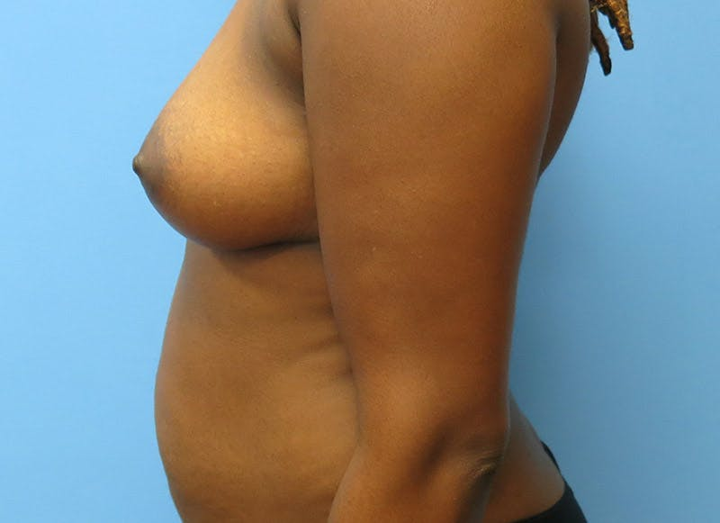 Breast Reconstruction - Flap Gallery - Patient 3831097 - Image 5