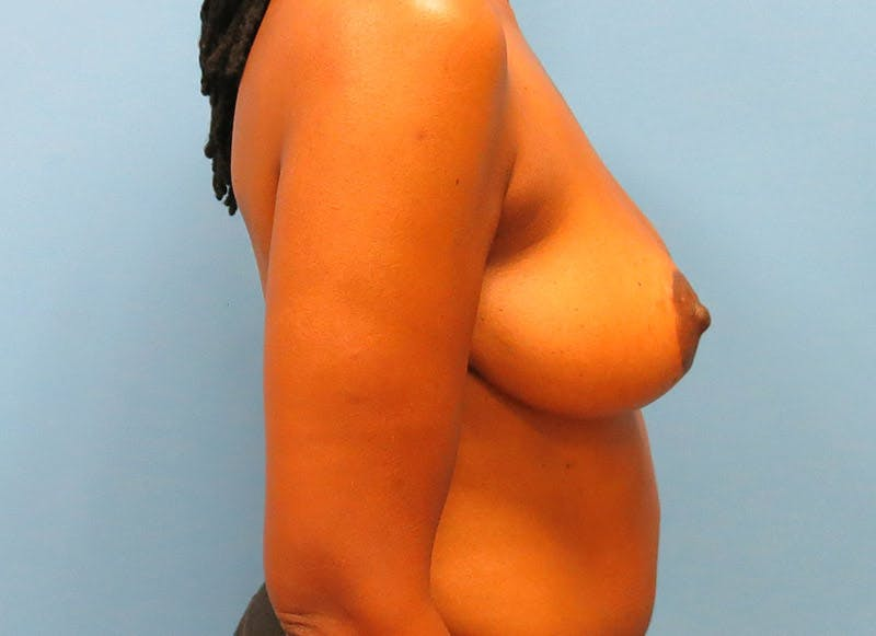 Breast Reconstruction - Flap Gallery - Patient 3831096 - Image 6