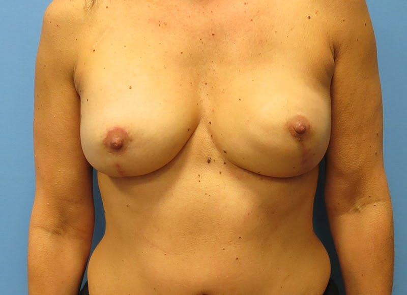 Breast Reconstruction - Flap Gallery - Patient 3831099 - Image 2