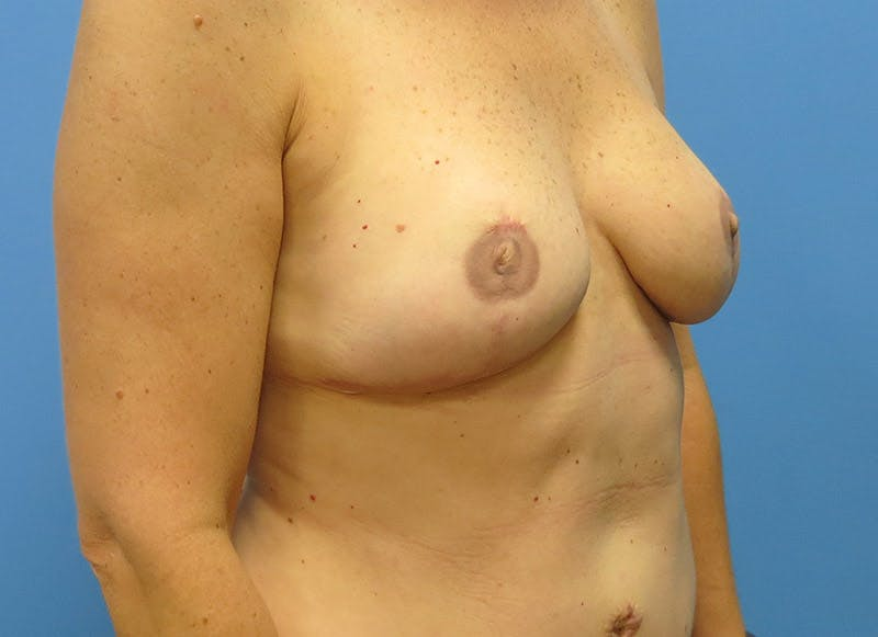 Breast Reconstruction - Flap Gallery - Patient 3831098 - Image 4