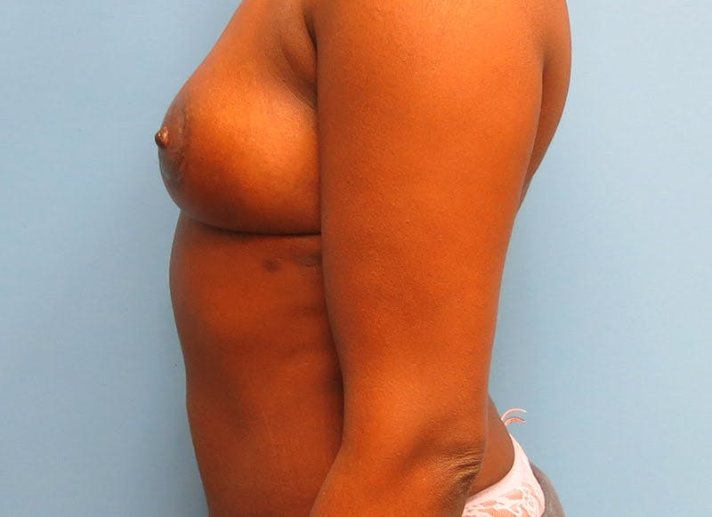 Breast Reconstruction - Flap Gallery - Patient 3831097 - Image 6