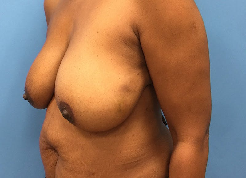 Breast Reconstruction - Flap Gallery - Patient 3831096 - Image 7