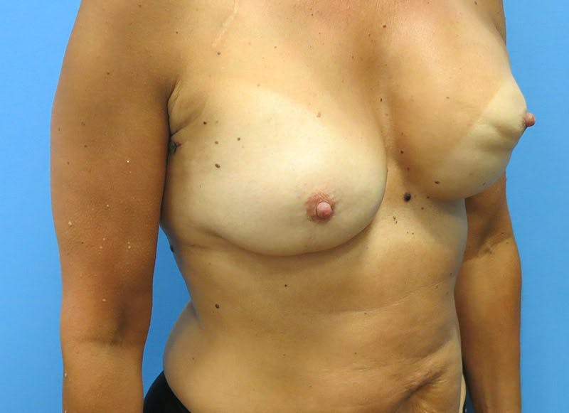 Breast Reconstruction - Flap Gallery - Patient 3831099 - Image 3