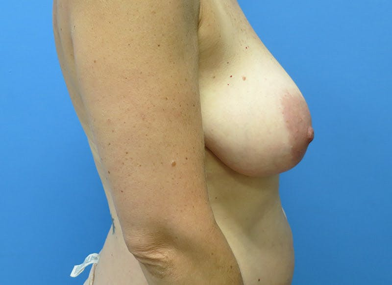 Breast Reconstruction - Flap Gallery - Patient 3831098 - Image 5