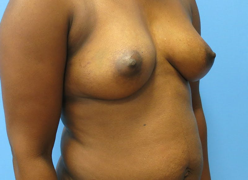 Breast Reconstruction - Flap Gallery - Patient 3831097 - Image 7