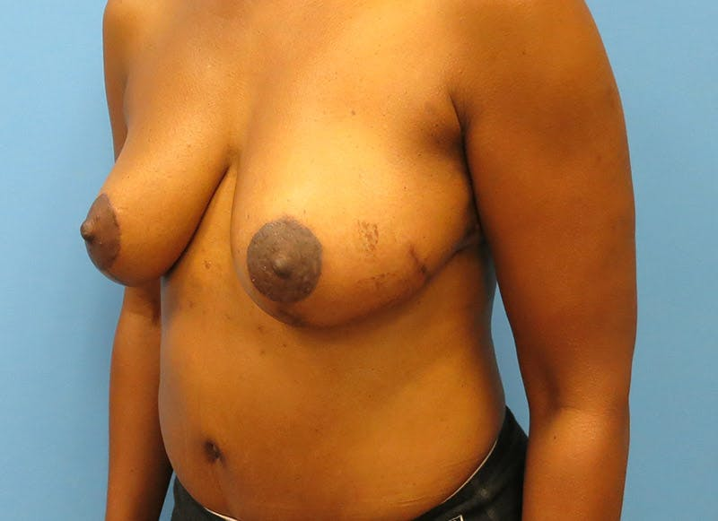 Breast Reconstruction - Flap Gallery - Patient 3831096 - Image 8