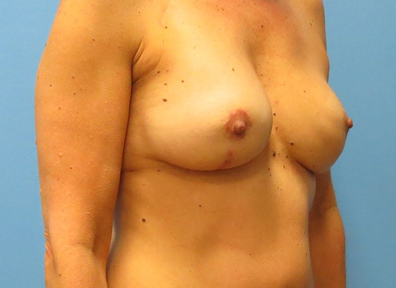 Breast Reconstruction - Flap Gallery - Patient 3831099 - Image 4