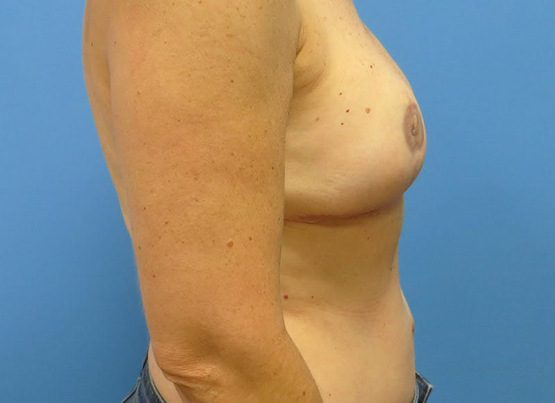 Breast Reconstruction - Flap Gallery - Patient 3831098 - Image 6