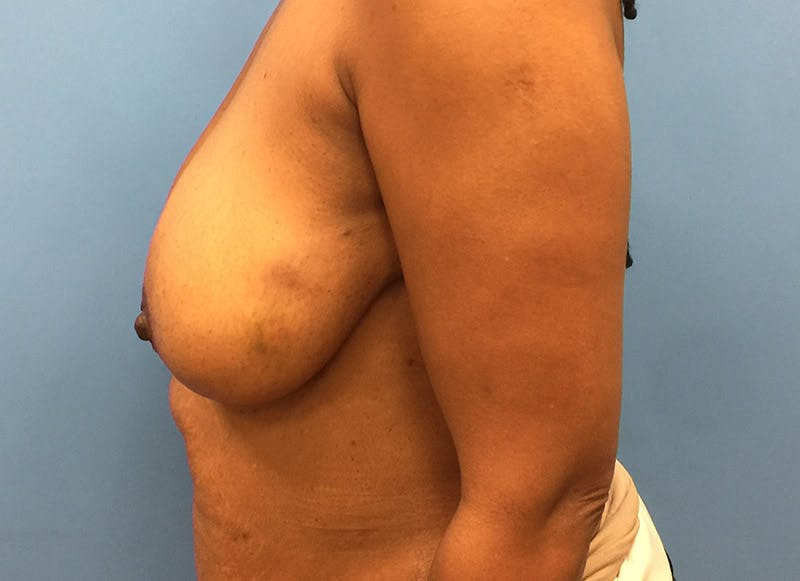 Breast Reconstruction - Flap Gallery - Patient 3831096 - Image 9