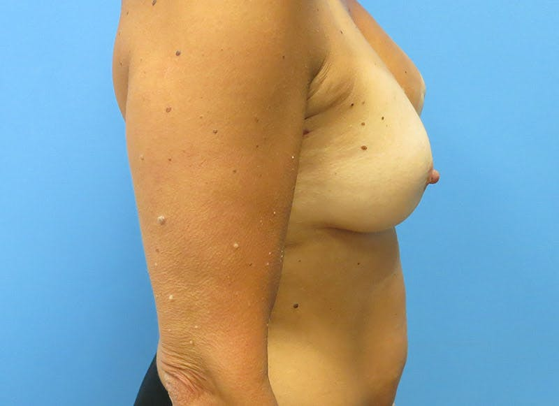 Breast Reconstruction - Flap Gallery - Patient 3831099 - Image 5