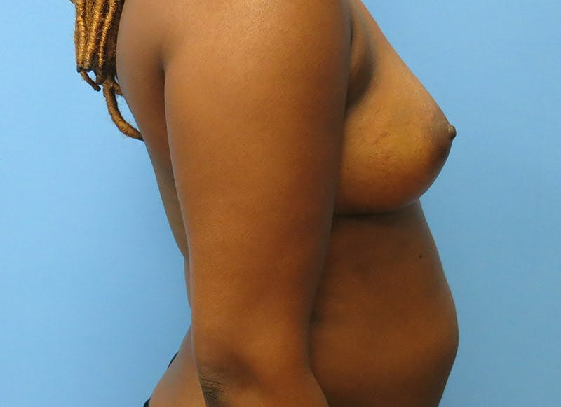 Breast Reconstruction - Flap Gallery - Patient 3831097 - Image 9