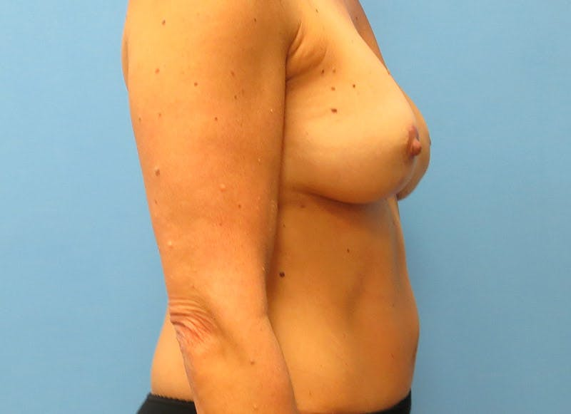 Breast Reconstruction - Flap Gallery - Patient 3831099 - Image 6