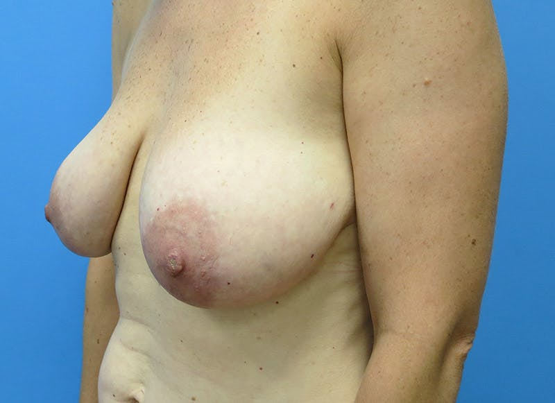 Breast Reconstruction - Flap Gallery - Patient 3831098 - Image 7