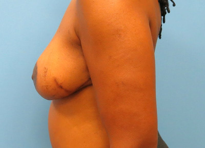 Breast Reconstruction - Flap Gallery - Patient 3831096 - Image 10