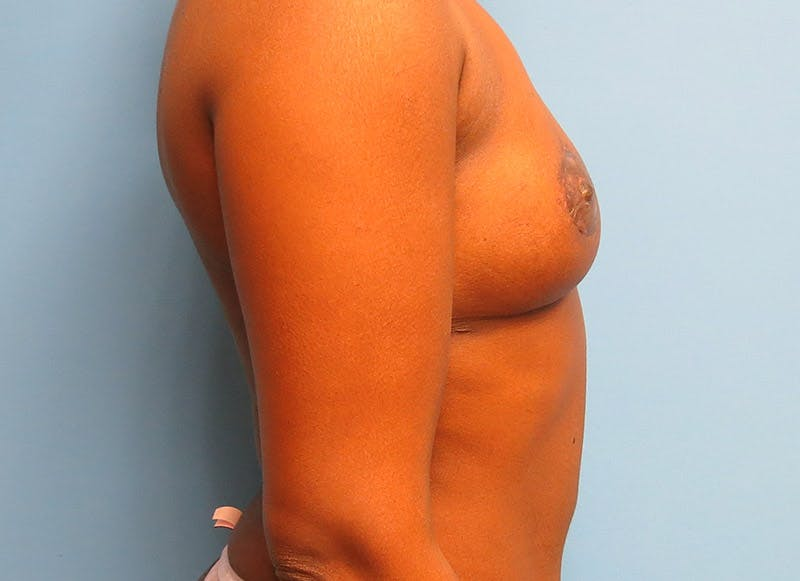 Breast Reconstruction - Flap Gallery - Patient 3831097 - Image 10