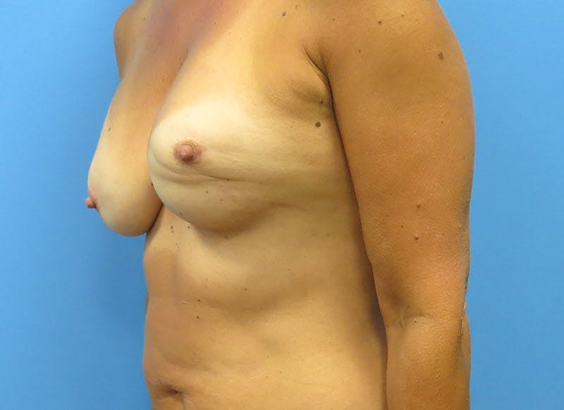 Breast Reconstruction - Flap Gallery - Patient 3831099 - Image 7