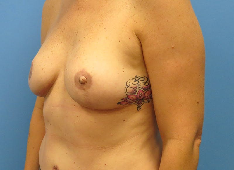 Breast Reconstruction - Flap Gallery - Patient 3831098 - Image 8