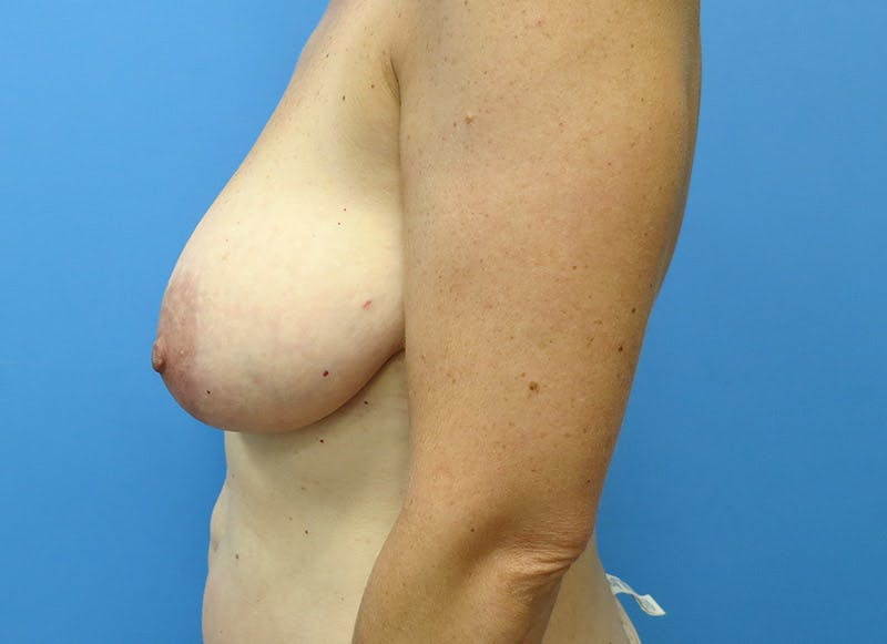 Breast Reconstruction - Flap Gallery - Patient 3831098 - Image 9