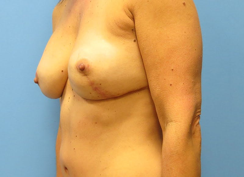 Breast Reconstruction - Flap Gallery - Patient 3831099 - Image 8