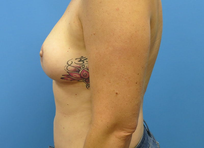 Breast Reconstruction - Flap Gallery - Patient 3831098 - Image 10