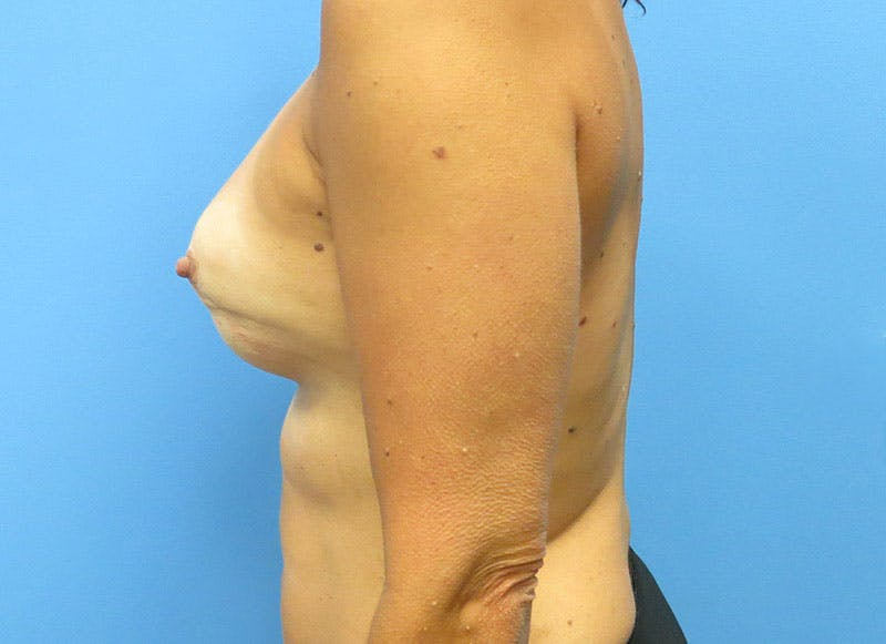 Breast Reconstruction - Flap Gallery - Patient 3831099 - Image 9