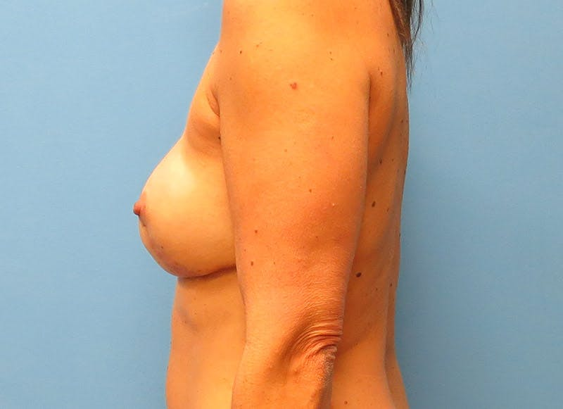 Breast Reconstruction - Flap Gallery - Patient 3831099 - Image 10